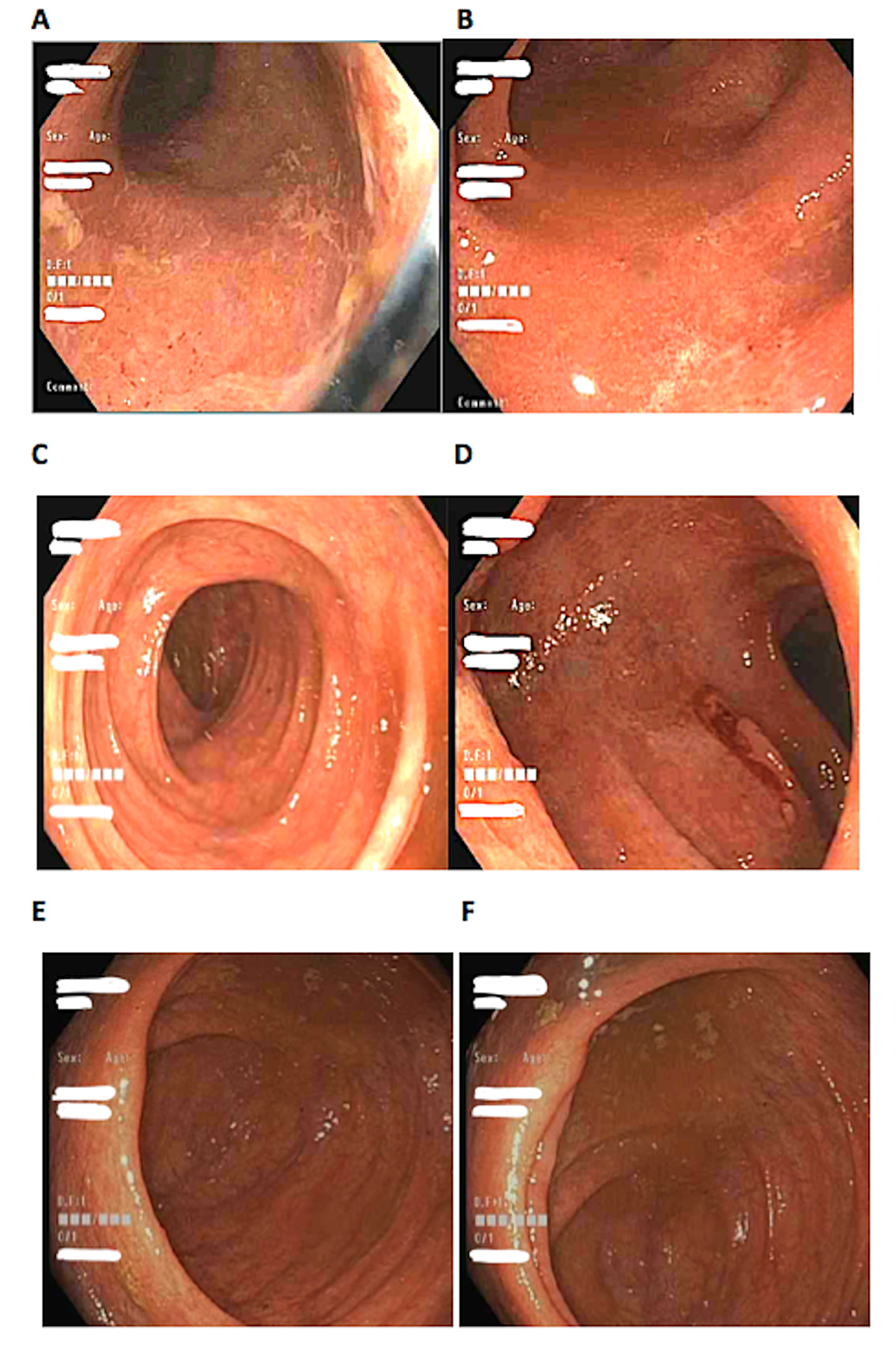Image-A-F-showing-diffuse-patchy-erythema-from-the-rectum-to-the-ileocecal-valve.-Image-A,-rectum.-Image-B,-sigmoid-colon.-Image-C,-ascending-colon.-Image-D,-transverse-colon.-Image-E,-cecum.-Image-F,-ileocecal-valve
