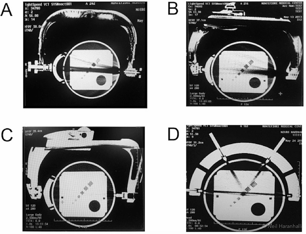Four-near-radiolucent-frames-in-conventional-CT