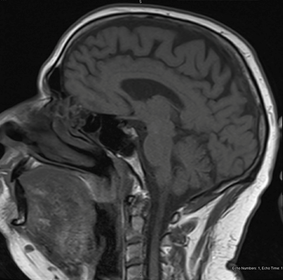 Sagittal-MRI-after-resolution-of-patient's-symptoms-with-no-acute-findings