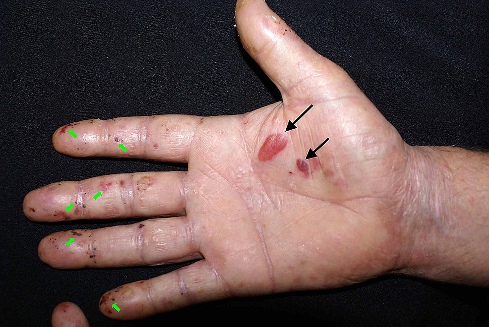 Clinical-image-illustrating-tense-blisters-(black-arrows)-and-multiple-erosions-(green-arrows)-on-the-right-palm