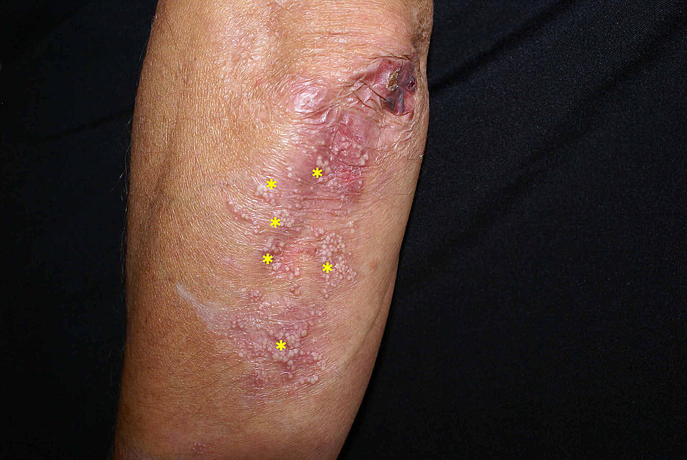 Multiple-milia-cysts-(yellow-asterisk)-developed-on-an-older-lesion-on-the-elbow