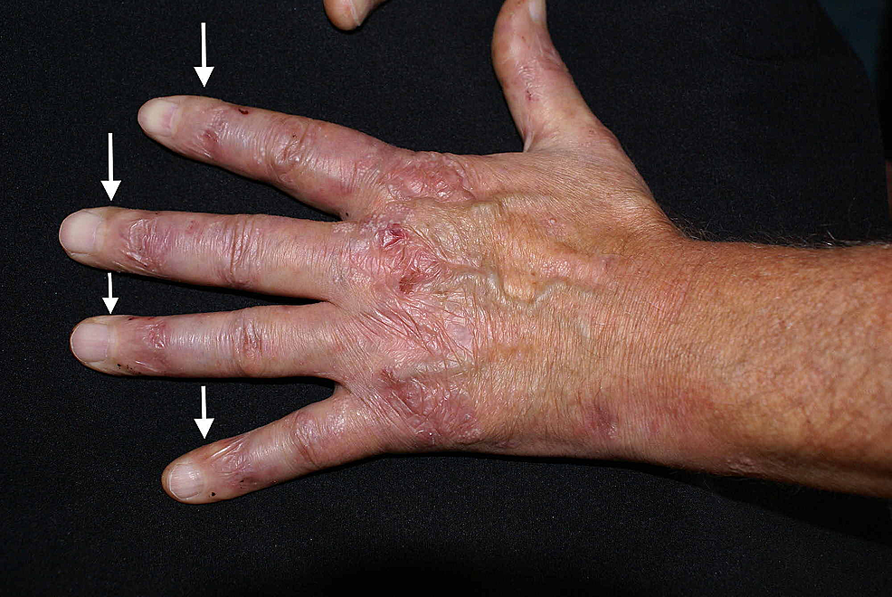 Fibrotic-changes-of-the-fingers;-please-notice-the-shiny-and-thickened-aspect-of-the-skin-(white-arrows)