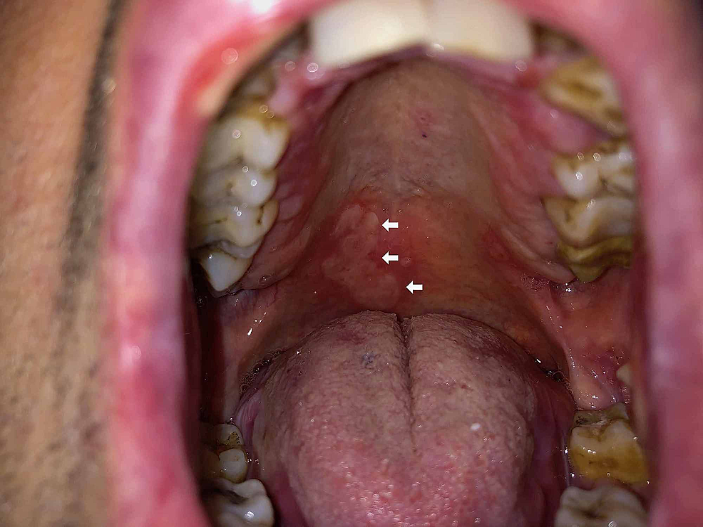 Mucosal-erosions-on-the-palate-(white-arrows)