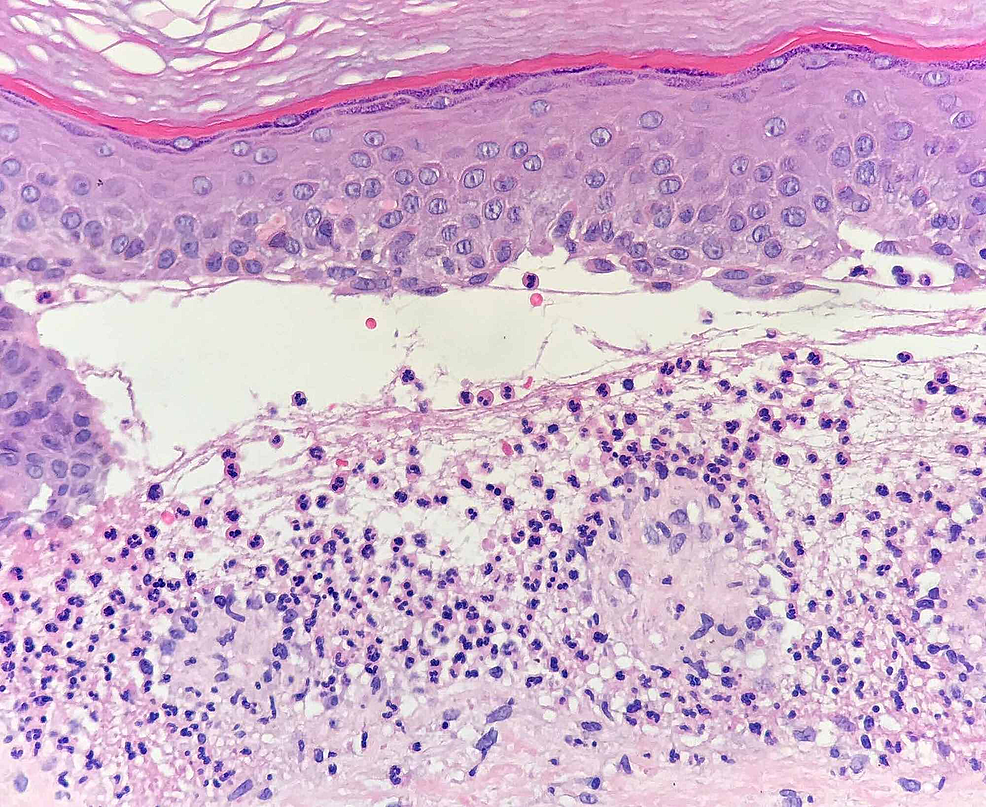 Microscopy-image-(Hematoxylin-and-Eosin-staining)-showing-subepidermal-blistering-and-a-neutrophil-rich-infiltrate-in-the-papillary-dermis-and-within-the-bullous-lesion