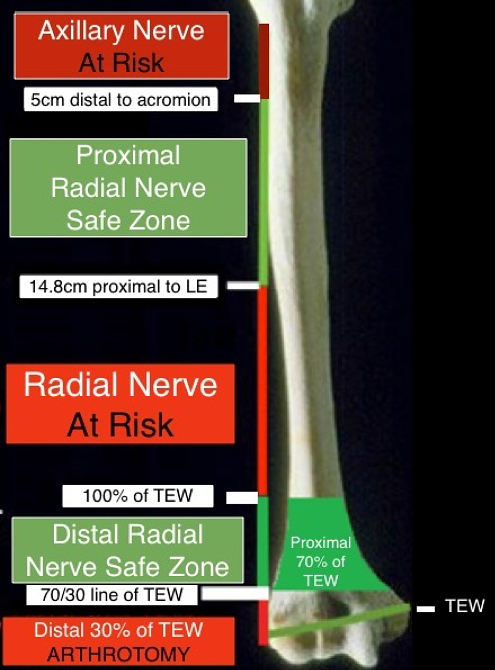 Radial-nerve-safe-zones-about-the-lateral-humerus