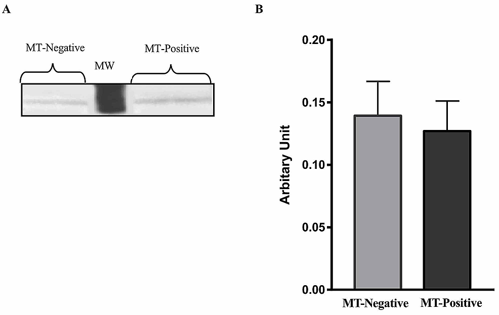 Leptin-protein-expression-levels-in-liver-tissue-of-mice-with-and-without-mammary-tumor-(MT)-development-at-74-weeks.-