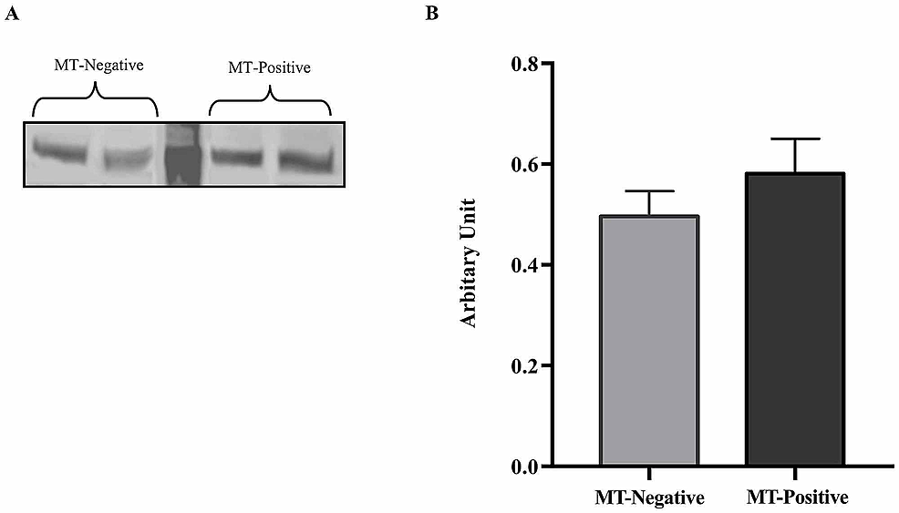 Leptin-receptor-(ObR)-protein-expression-levels-in-liver-tissue-of-mice-with-and-without-mammary-tumor-(MT)-development-at-74-weeks.-