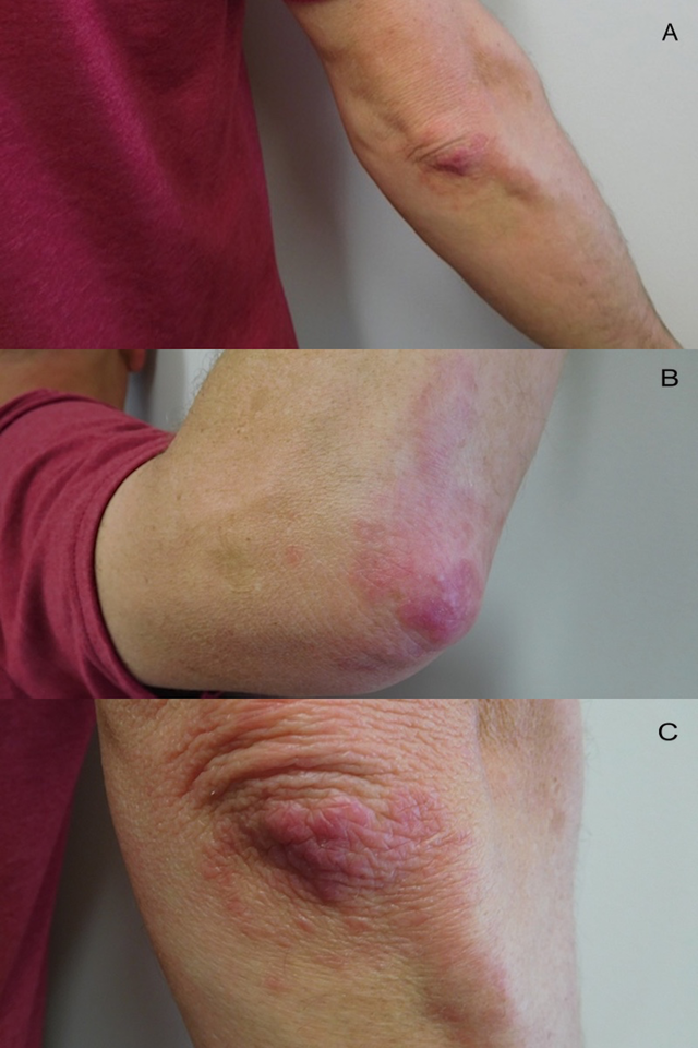 Right-elbow-lesions-of-palisaded-granulomatous-dermatitis-