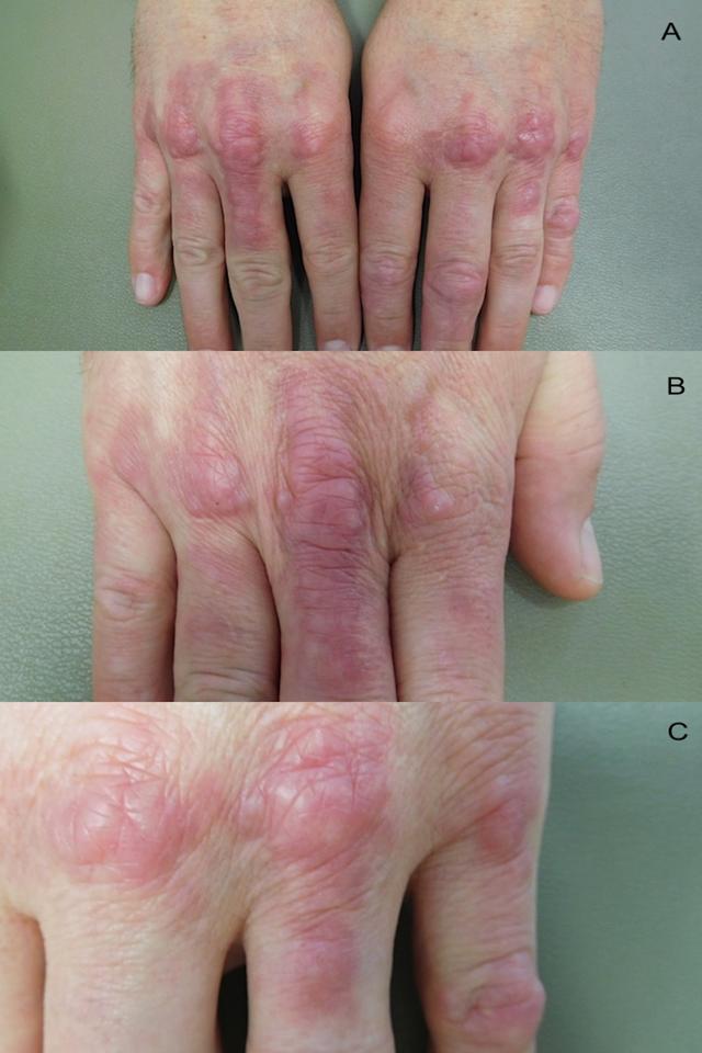 Palisaded-granulomatous-dermatitis-involving-the-hands