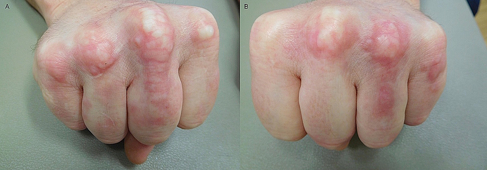Palisaded-granulomatous-dermatitis-lesions-blanch-when-hands-are-fisted
