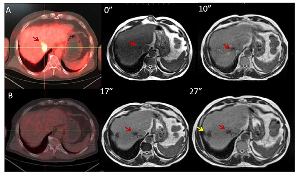 PET-CT-and-MRI-scans-with-gadoxetate