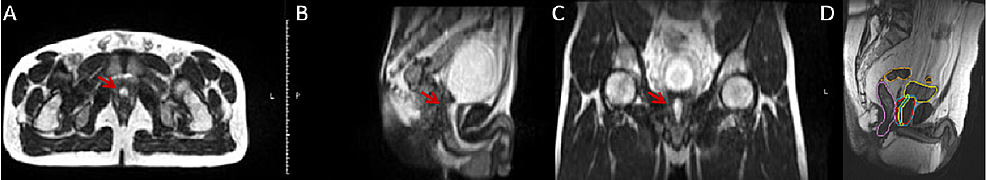 MRI-scans-showing-urethra-during-micturation-and-contouring