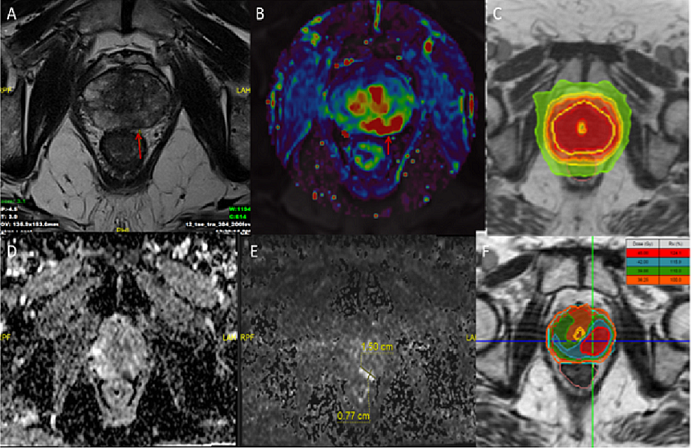MRI-scans-and-radiotherapy-planning