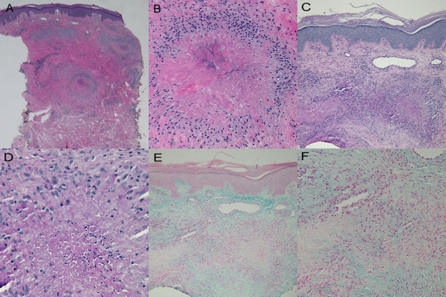 Histology-of-lesion-on-the-right-elbow