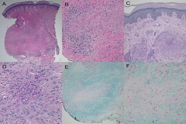 Histology-of-lesion-on-right-third-metacarpophalangeal-joint-