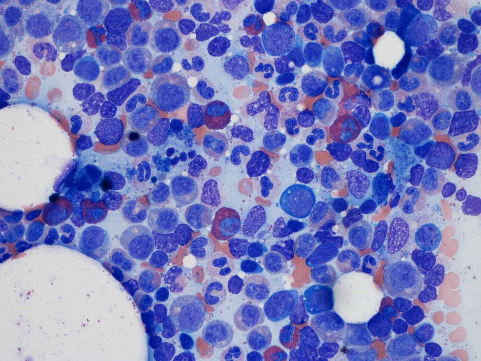 Bone-marrow-aspirate-showing-lack-of-erythroid-precursors