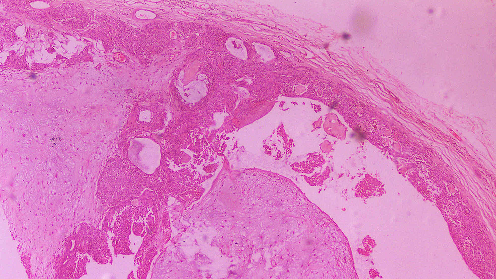 Histopathological-section-of-the-tumor