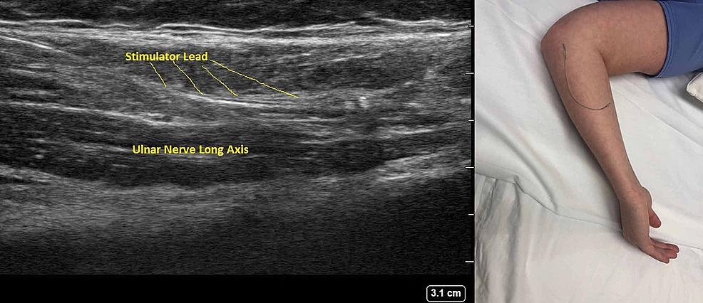 Administration-of-percutaneous-peripheral-nerve-stimulation