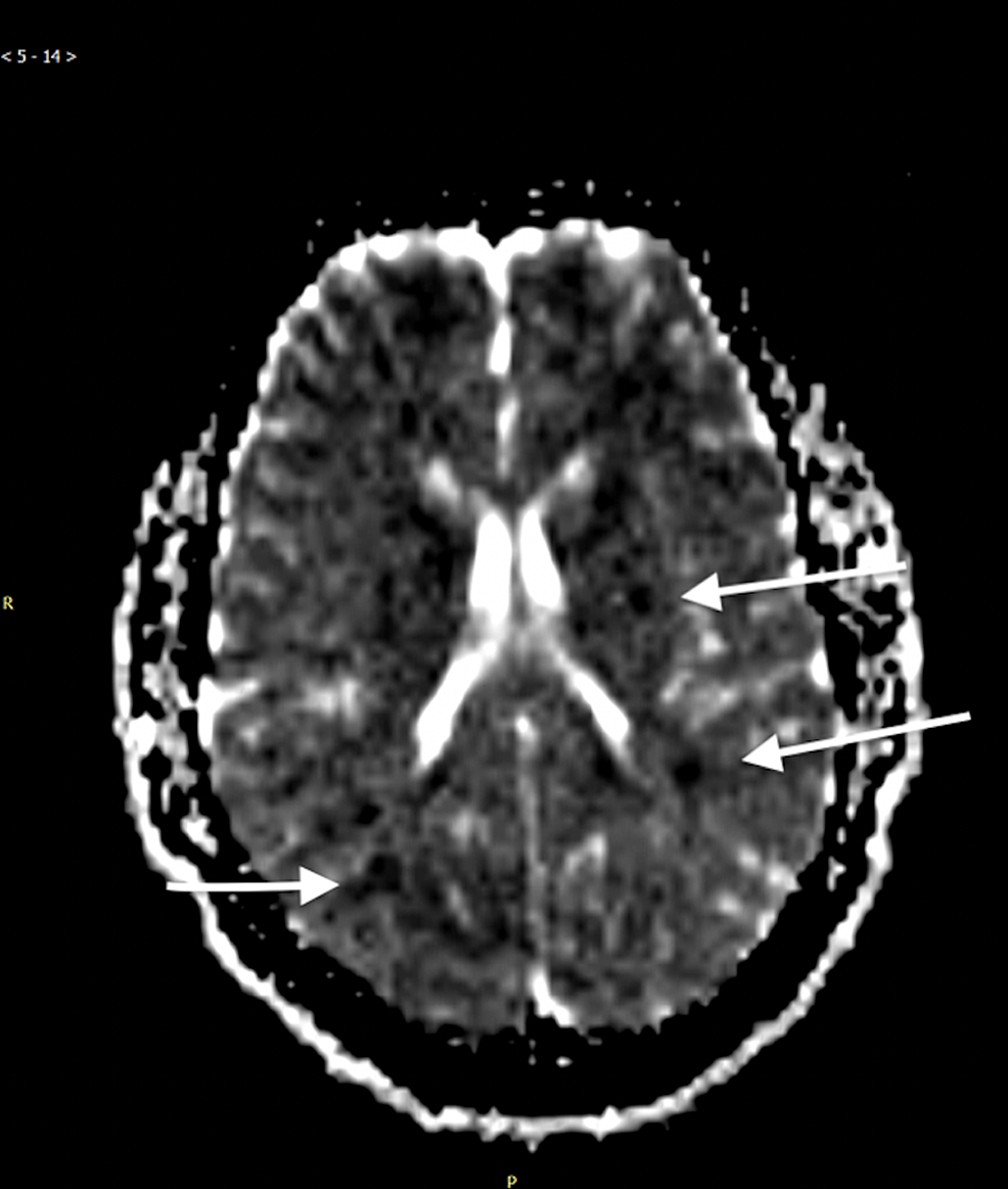 MRI-of-the-brain-indicated-evidence-of-scattered-embolic-ischemia-secondary-to-cerebral-fat-embolism