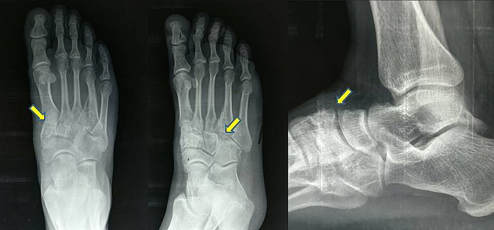 Pre-op-radiograph-(antero-posterior-and-lateral-views)