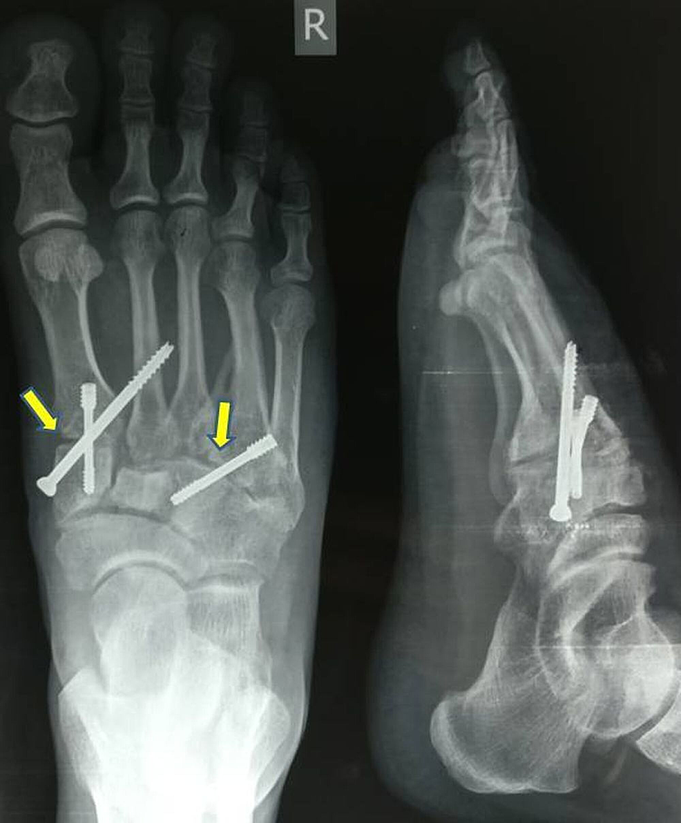 Post-op-radiograph-(antero-posterior-and-lateral-views)