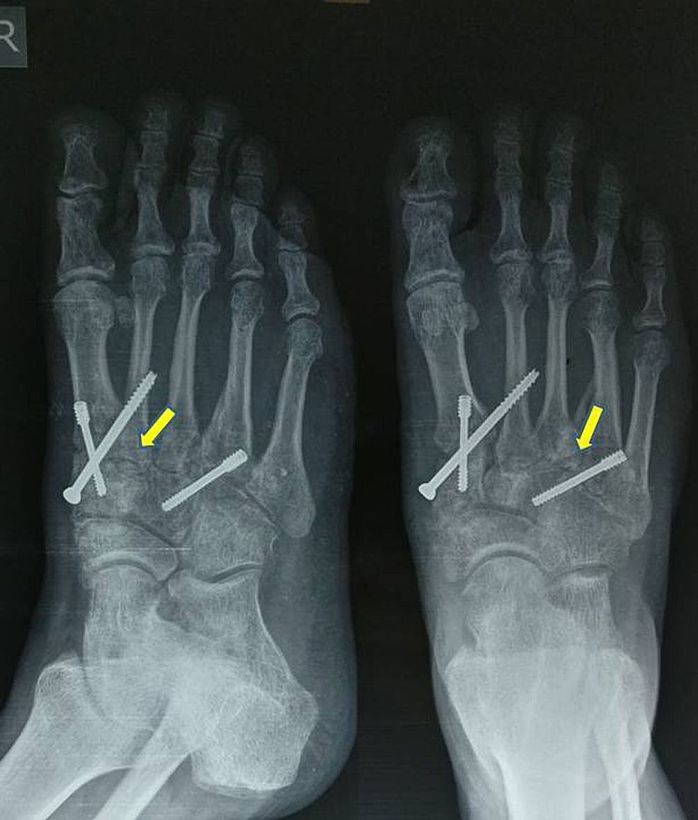 Follow-up-radiographs-at-two-months
