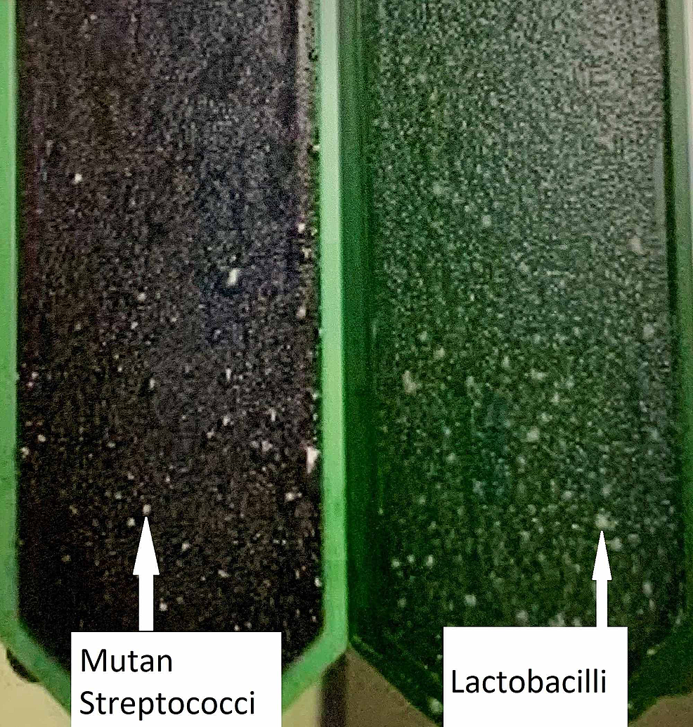 Mutan-streptococci-and-lactobacilli-colony-on-test-vial-after-incubation