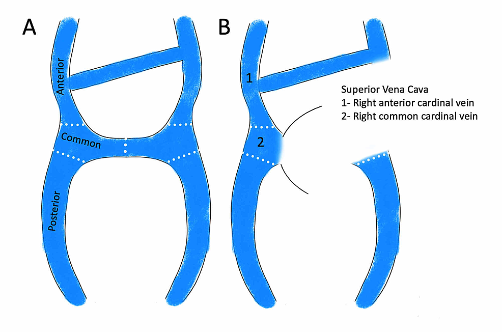 Normal-embryological-formation-of-SVC