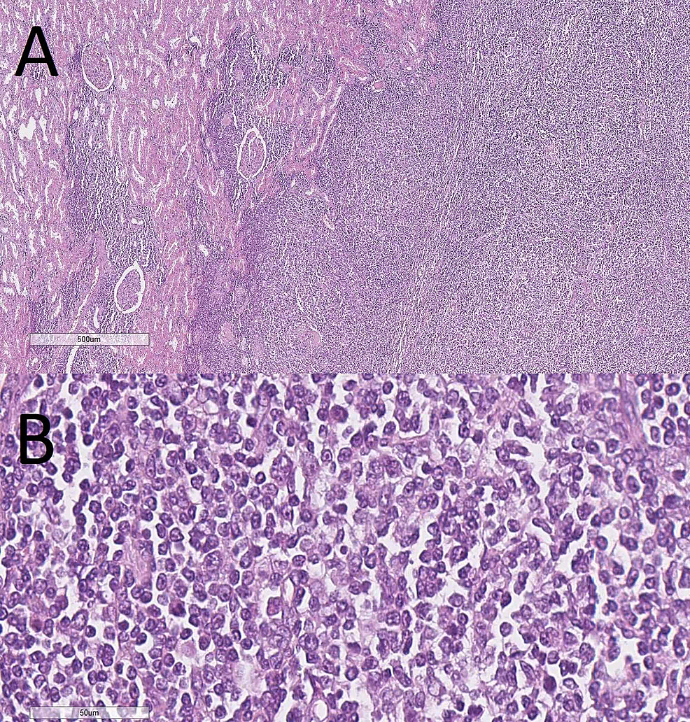 Lymphocytic-proliferation-in-the-renal-capsule-with-infiltration-into-the-parenchyma,-H&E-stain,-(A)-original-magnification-40x,-(B)-original-magnification-400x