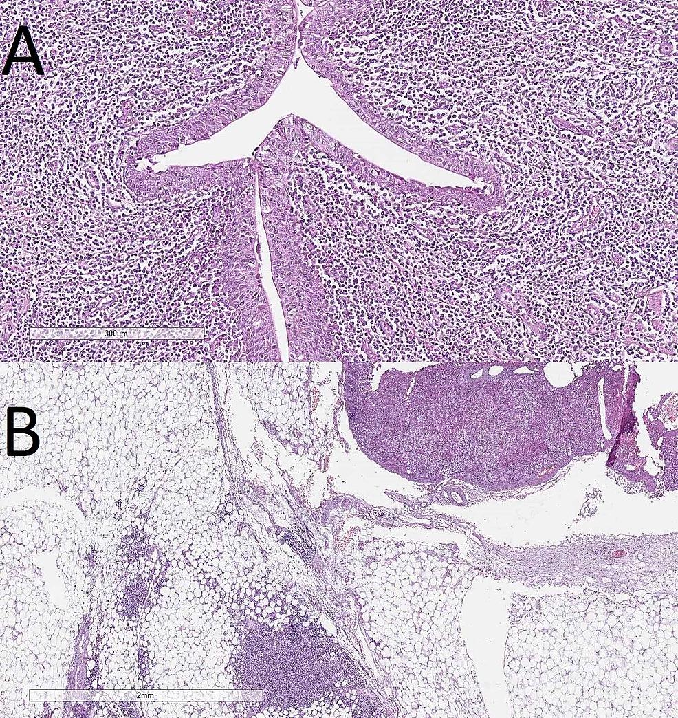 (A)-Invasion-into-the-proximal-part-of-the-ureter,-H&E,-original-magnification-100x.-(B)-Invasion-into-the-periadrenal-connective-tissue,-H&E,-original-magnification-20x