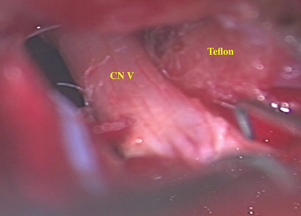 Intraoperative-microscopic-picture-(50x)-shows-left-trigeminal-nerve-(CN-V)-assuming-a-more-natural-course.