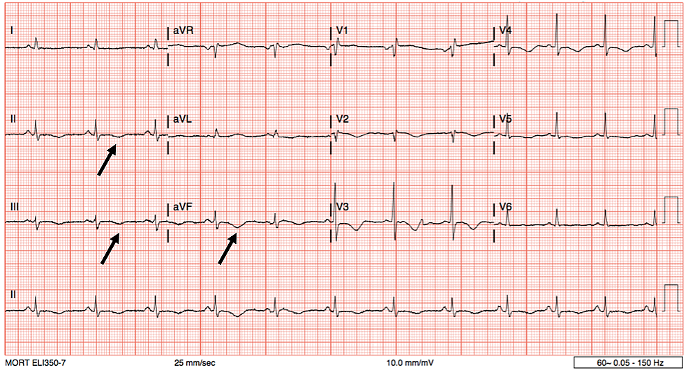 Electrocardiogram-reveals-T-wave-inversions-in-the-inferior-leads-(black-arrows),-QTc-prolongation-is-also-noted-(QTc-=-526-ms).