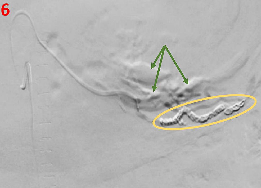 Fluoroscopy-image-post-intervention