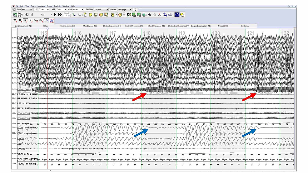 :-Polysomnogram-with-the-VNS-turned-ON-showing-increased-chin-EMG-(red-arrows)-associated-with-mixed-apneas-(blue-arrows).-