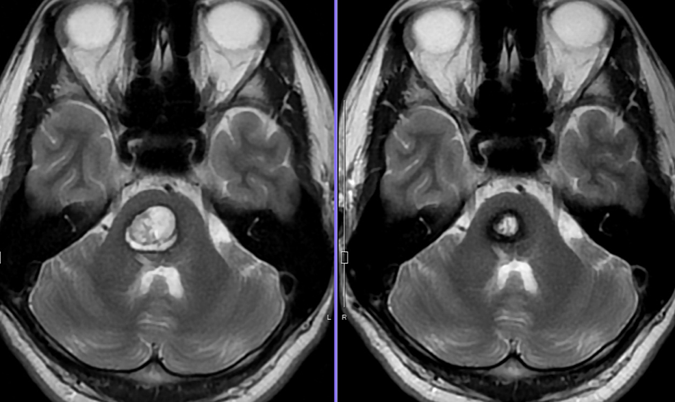 Follow-up-MRI-findings-after-radiosurgery