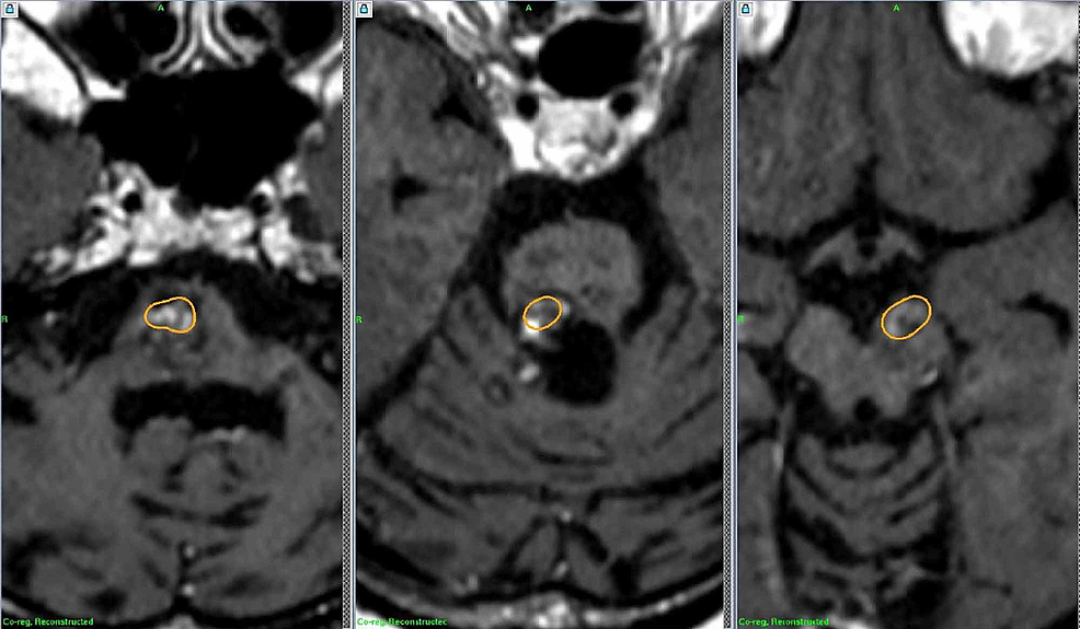 Follow-up-MRIs-after-radiosurgery