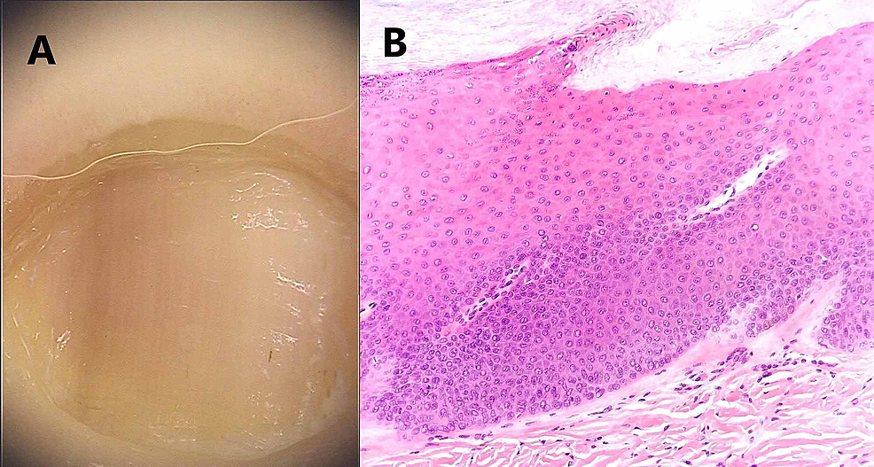 Frictional-longitudinal-melanonychia-of-the-fifth-toe:-(A)-Macroscopic-image.-(B)-Histological-image:-while-no-melanocytes-are-detected-on-hematoxylin-eosin-stained-longitudinal-nail-biopsy,-Melan-A-staining-reveals-dispersed-melanocytes-with-dendritic-cytology--