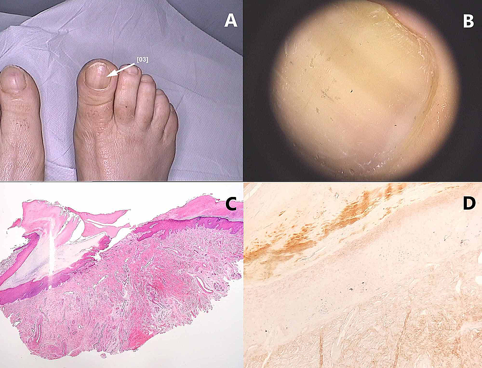 Nail-apparatus-lentigo:-(A)-Macroscopic-image.-(B)-Dermoscopic-image-that-reveals-a-longitudinal,-light-brown-band.-(C)-Longitudinal-nail-biopsy-of-a-nail-matrix-lentigo-–-melanocytes-are-not-observed-on-hematoxylin-eosin-staining.-(D)-Fontana-Masson-stained-sections-show-minimal-pigmentation-