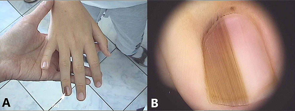 Congenital-ungual-nevus:-(A)-Clinical-picture-showing-light-and-dark-longitudinal-brown-bands-and-periungual-pigmentation;-(B)-Dermoscopic-appearance