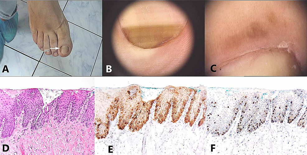 Subungual-in-situ-melanoma:-(A)-Macroscopic-image.-(B,-C)-Dermoscopic-images-showing-an-aspect-of-longitudinal-melanonychia-composed-of-bands-of-different-width,-spacing-and-color,-accompanied-by-Hutchinson's-sign;-(D)-Longitudinal-biopsy-–-hematoxylin–eosin-stain.-(E,F)--Melan-A-stain-showing-a-lentiginous-proliferation-of-atypical-melanocytes