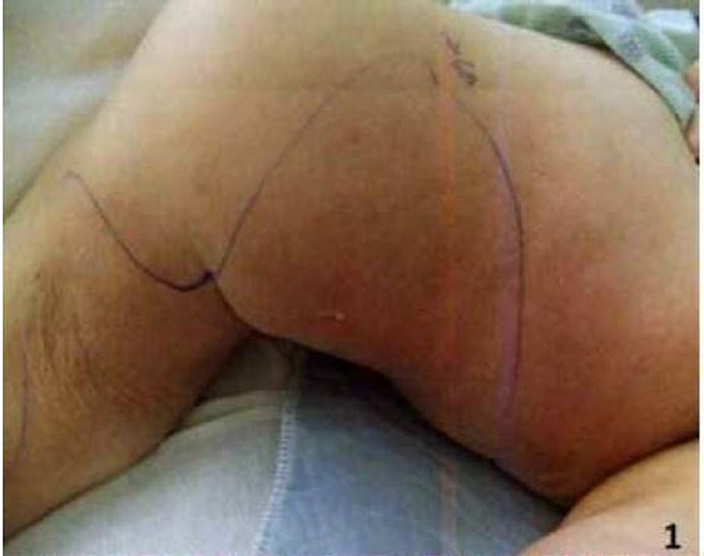 Calciphylaxis-skin-lesion-on-the-right-inner-thigh-(demarcated-by-markings)