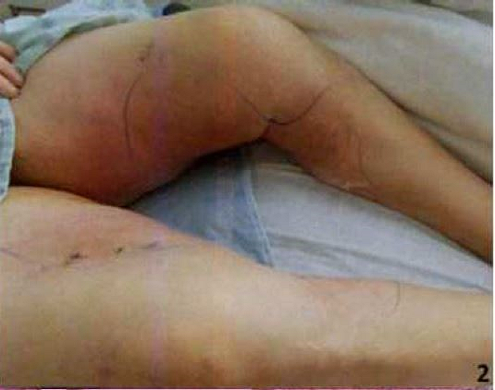 Calciphylaxis-skin-lesion-on-the-left-inner-thigh-extending-to-the-leg-(demarcated-by-markings)