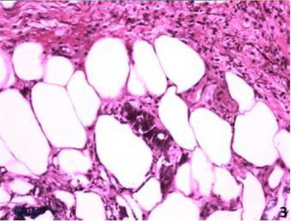 Hematoxylin-and-eosin-(H&E)-staining-of-skin-biopsy-showing-calcium-deposits-in-the-small-blood-vessels-and-areas-of-fat-necrosis-with-foamy-histiocytes-and-neutrophils