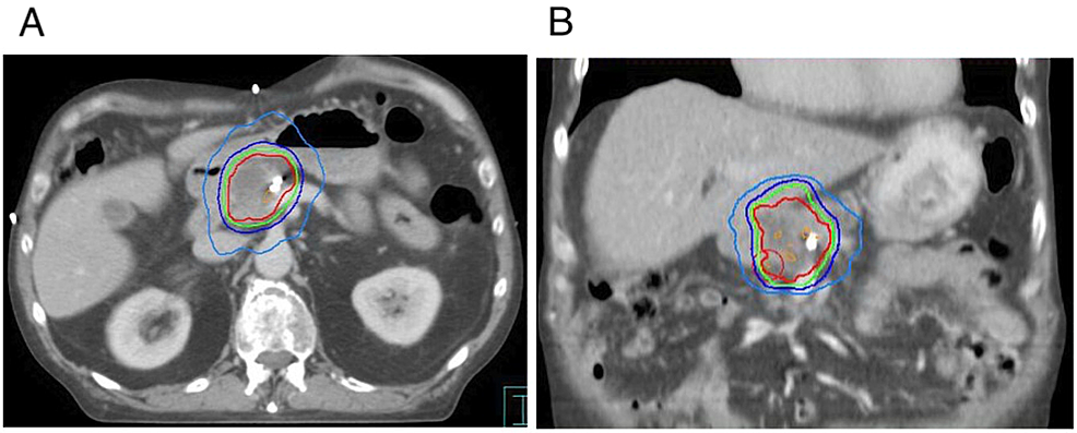 Dose-distribution-of-pancreas-stereotactic-body-radiotherapy-plan-on-axial-(A)-and-coronal-(B)-computed-tomography-simulation-scan-(prescription:-27-Gy-in-three-fractions)