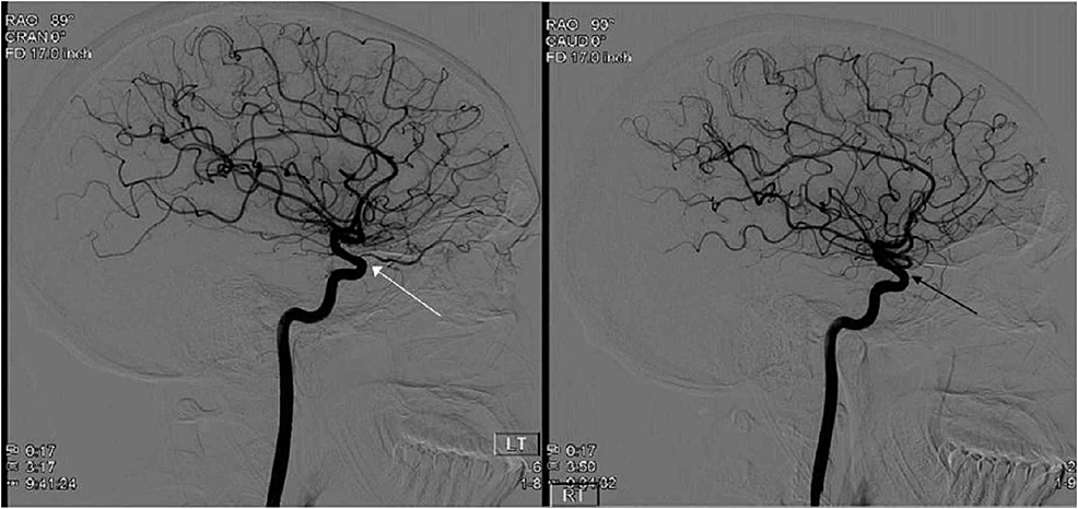 A-bilateral-carotid-angiogram-demonstrating-the-patient's-normal-left-retinal-artery-(white-arrow)-in-comparison-to-the-right-retinal-artery-occlusion-(black-arrow).