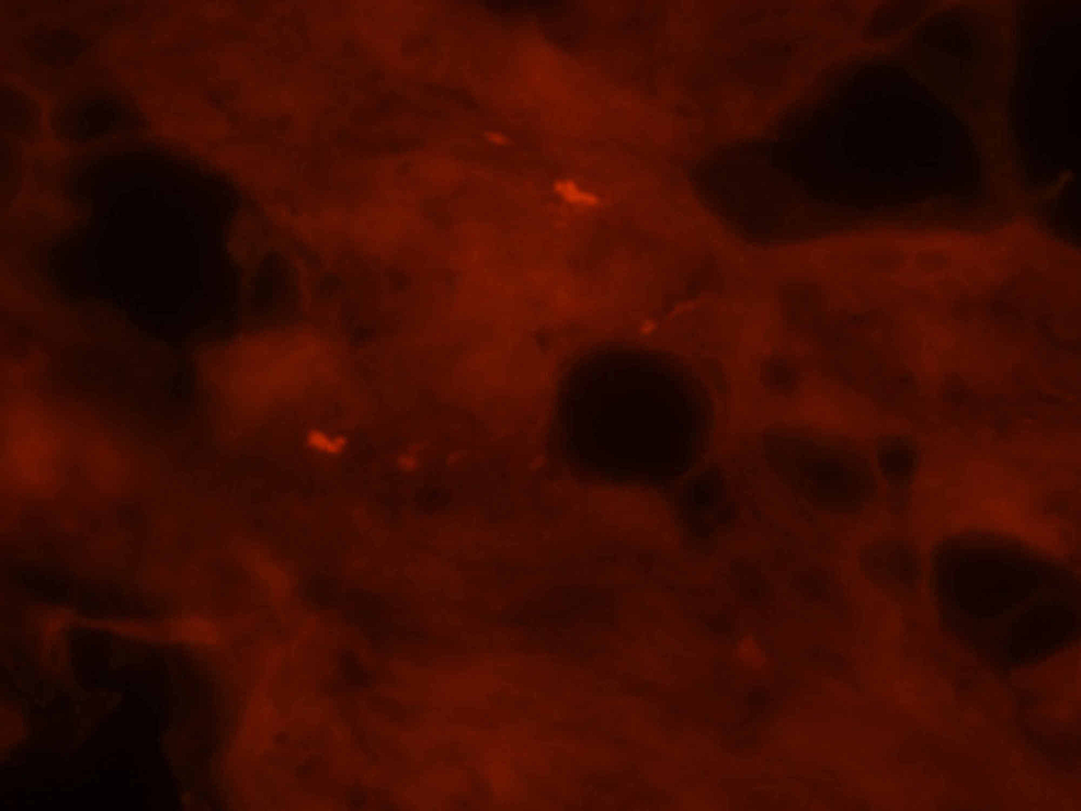 Congo-red-stain-reveals-muscle-fibers-containing-congophilic-intracellular-inclusions