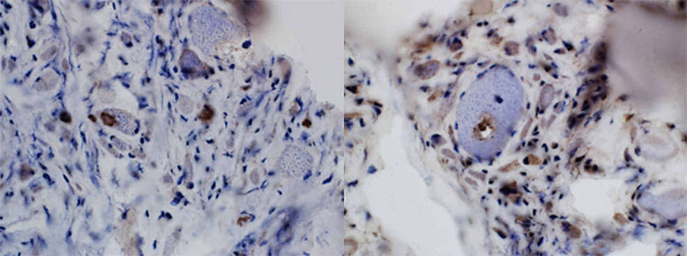 TDP43/P62-staining-reveals-protein-accumulations-and-a-rimmed-vacuole