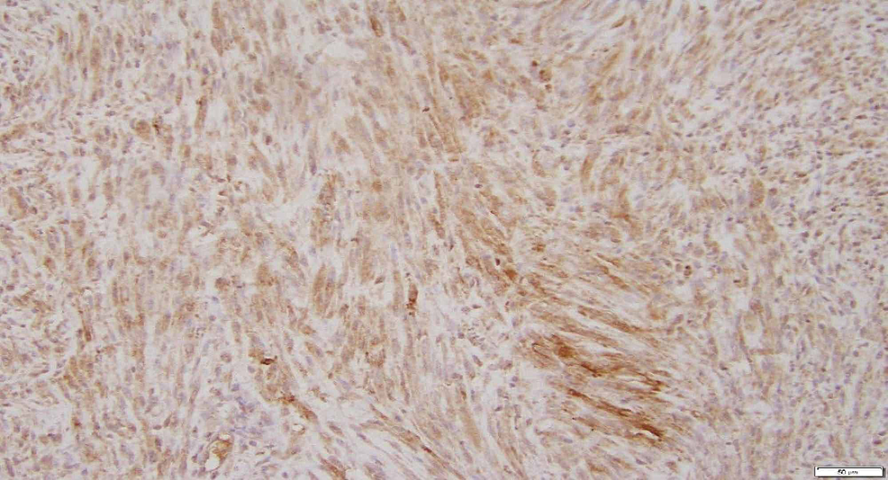 A-representative-section-of-the-large-leiomyoma-shows-diffuse-moderate-to-strong-cytoplasmic-immunopositive-for-Erythropoietin-(200x-EPO-IOHC).