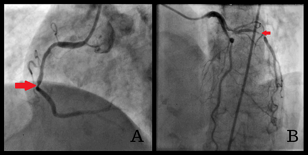 Coronary-CT-angiography-images-on-admission-(A)-marked-occlusion-of-mid-RCA-(B)-in-stent-restenosis-of-the-LAD-