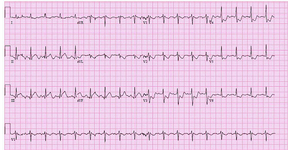 Electrocardiogram-(EKG)-on-presentation-shows-ST-elevations-in-leads-II,-III-and-aVF
